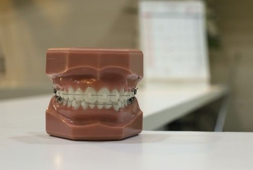 How to Take Care of your Oral Health